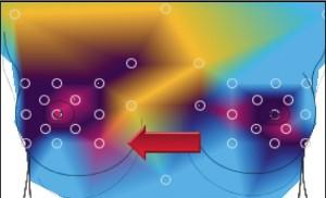 Regulatie thermografie in plaats van medische thermografie omdat het meer inzicht biedt.