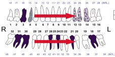 tanden en kaakoverzicht