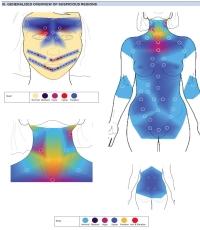 infrarood thermografie op basis van 240 meetpunten