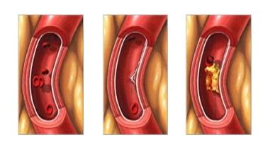 De hart- en vaatwandtest meet aderverkalking in een vroege fase