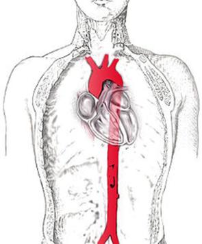 te hoge bloeddruk in de aorta is slecht voor de hartspier