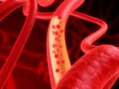 Vaatonderzoek is belangrijk voor het meten vanbloedvatgezondheid