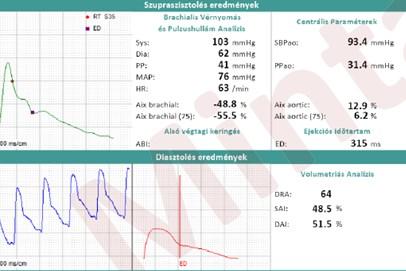 Centrale bloeddruk en AiX