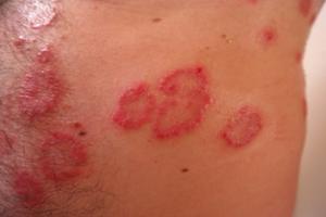 Allergische huidaandoeningen hebben hun oorzaak vaak in de darm
